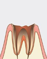 歯が溶けて根本部分だけ残った状態
